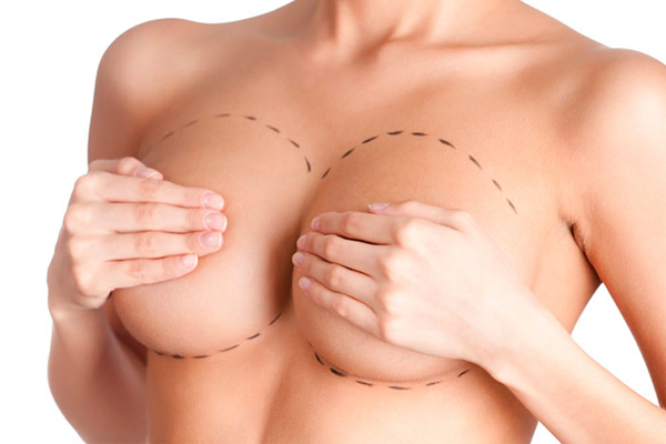 mamoplastia-de-aumento