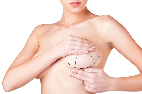 mamoplastia-de-reduccion1