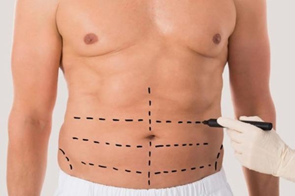 marcacion-abdominal